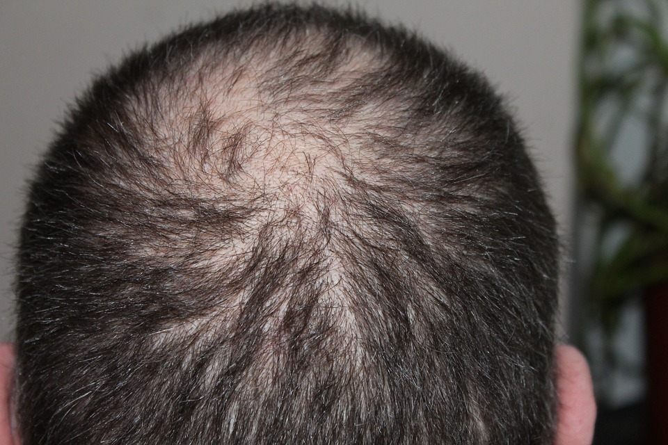 New report explores the global hair loss solutions market